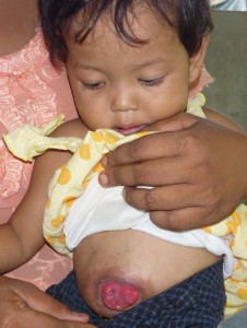 2-year-old Nway with her colostomy