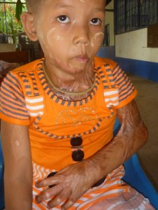 Than Gan May Oo suffered third degree burns on neck, chest and arms