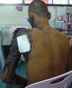1-121017_BAMF_Aung_M34_burn victim (14)