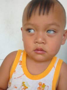 Wai Linn Phyo is ready for surgery to treat Congenital Glaucoma